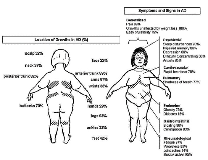Adipose Disorder with or withour Dercum's Disease