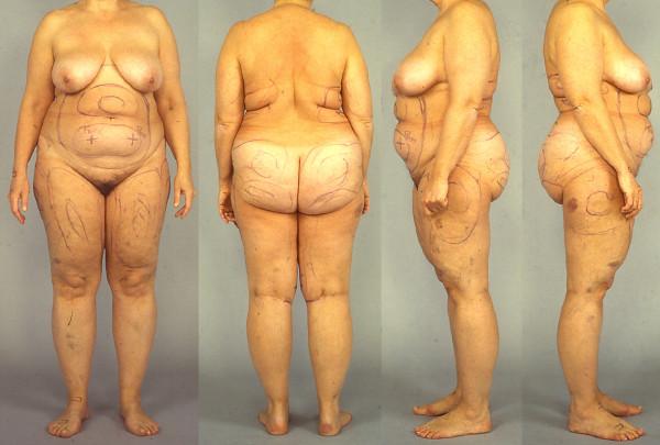 Bild från: www.fatdisorders.org Så här kan det se ut att ha Dercums sjukdom. Utan anamnes, status och noggrann palpation, går det inte att ställa diagnos. Dercum's disease (Lipomatosis dolorosa)