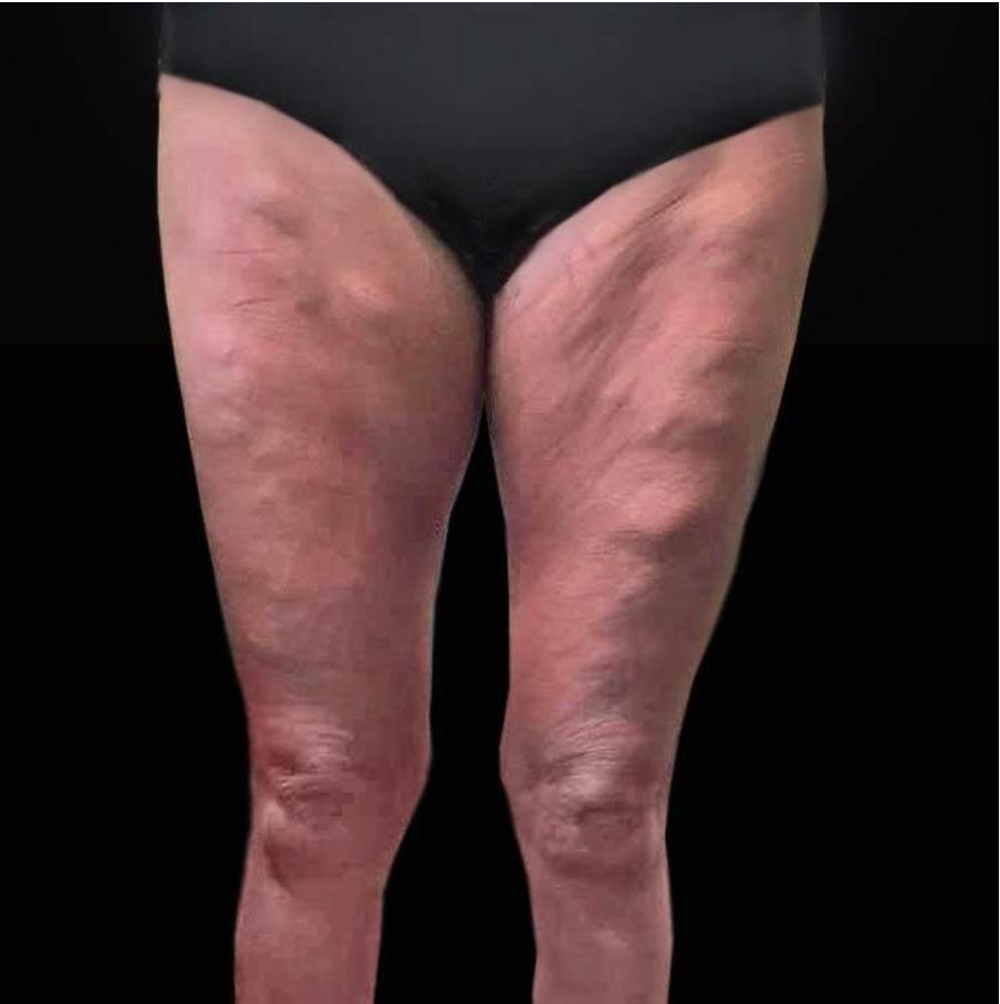 Typisk distribution av AD (Adipose Disorder) med eller utan Dercum's sjukdom.
