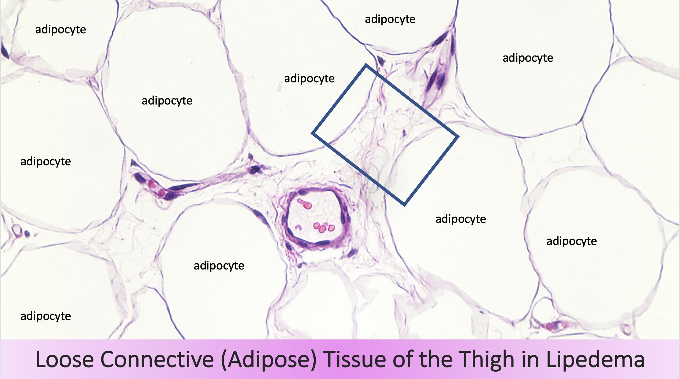 Loose adipose tissue Lipedema, copyright Karen L. Herbst, MD, PhD, 2020